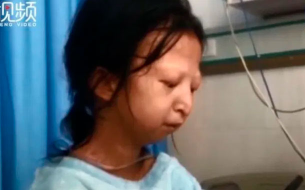 Murió la joven china que con su historia conmocionó mundo