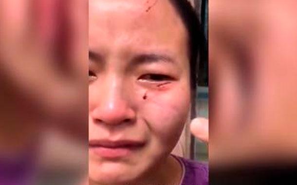 Paciente con coronavirus muerde a una enfermera para escapar de la cuarentena