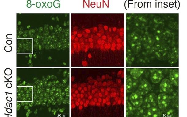 Enzima HDAC1 podría reparar daño del ADN causada por la edad