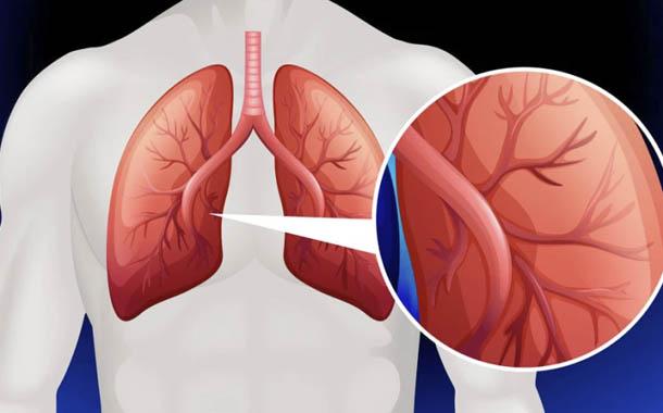 Hipertensión arterial pulmonar, una enfermedad silenciosa
