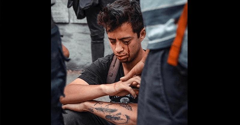 Detienen a policía que habría dejado ciego a joven durante protestas en Chile
