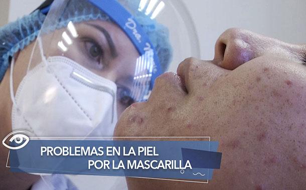 Problemas en la piel por la mascarilla