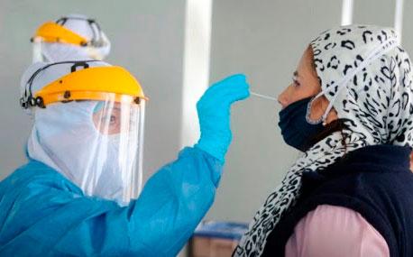 La prueba PCR detecta fragmentos del virus
