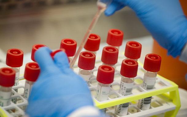 Se pierden 250.000 pruebas de COVID en Honduras por mal manejo de temperatura
