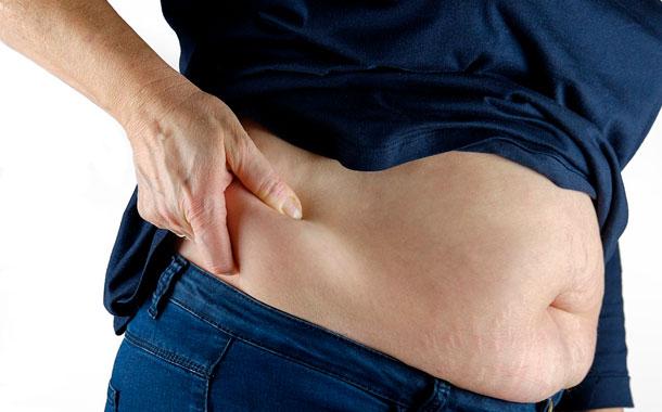 Preocupación en comunidad médica por el sobrepeso y el Covid-19